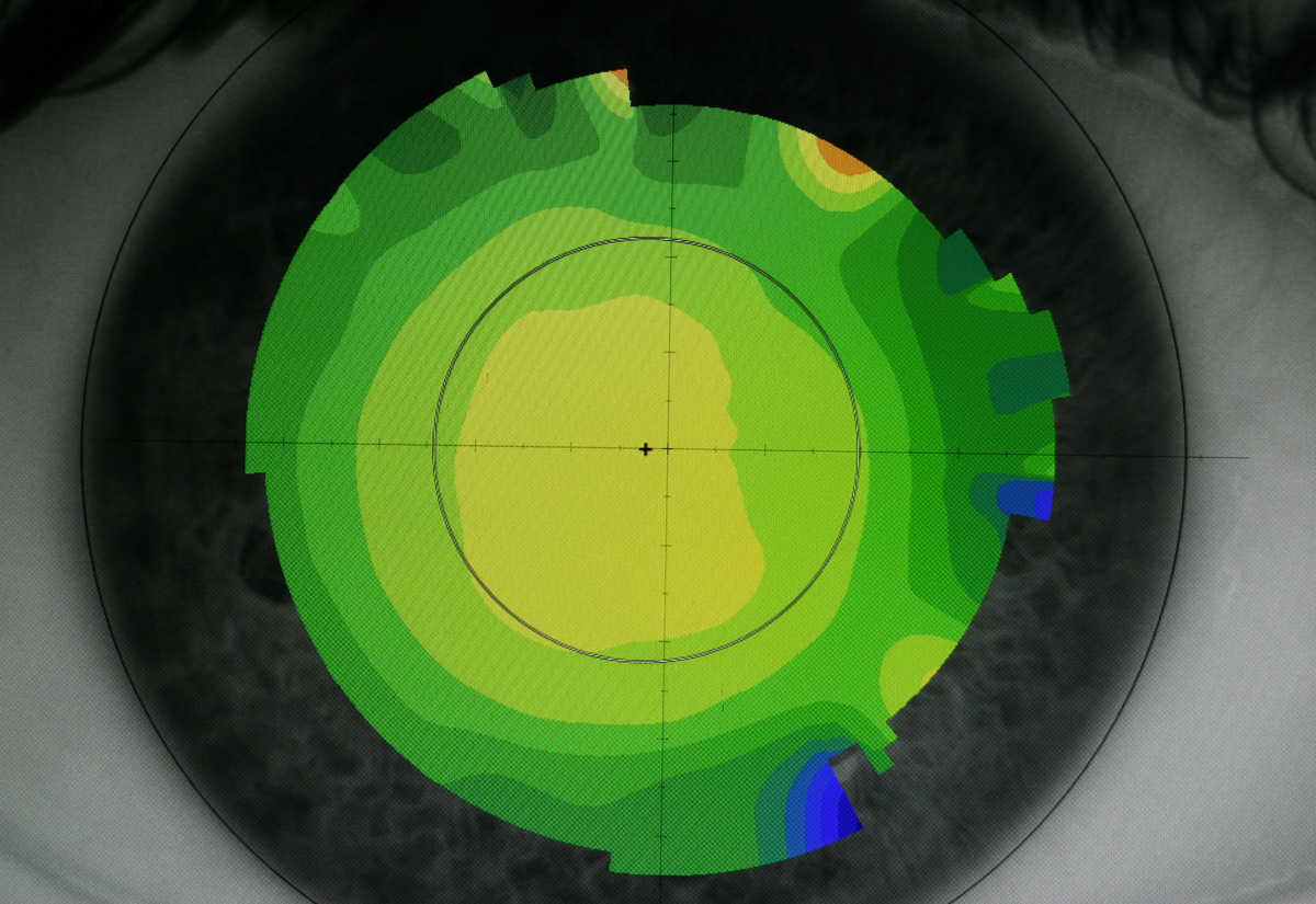 cornea normal